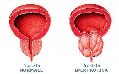 In questo articolo Omeopatia Prostata approfondiremo le strategie terapeutiche Omeopatiche, Omotossicologiche e Omeosiniatriche (cioè mesoterapia nei punti di agopuntura con farmaci di Low dose medicine ) nel trattamento delle varie problematiche della prostata